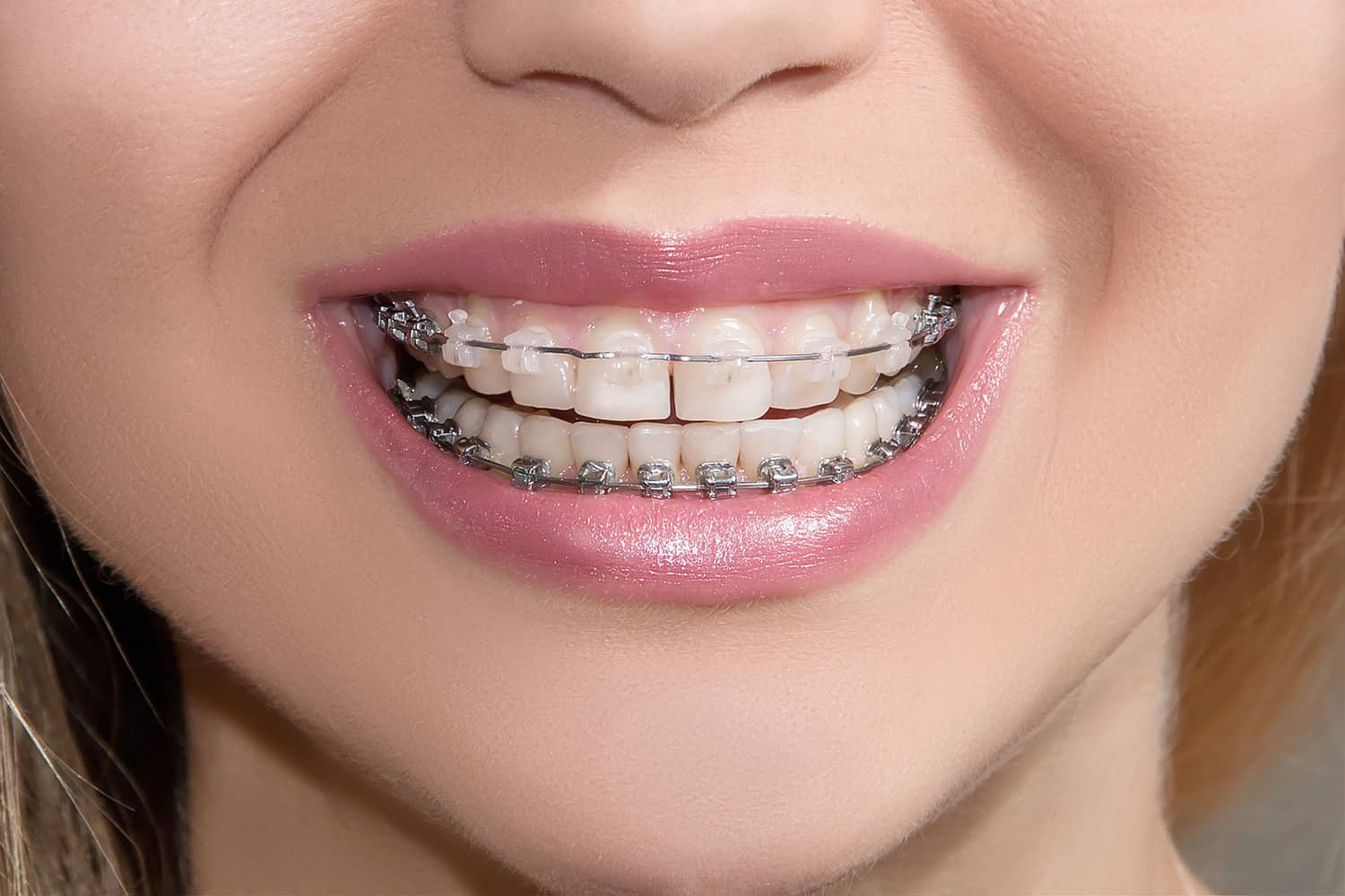 progressive orthodonitics